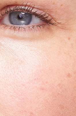 Dark spots intensity